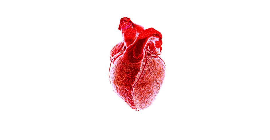 Exposição «O Amor Mata», <a href=